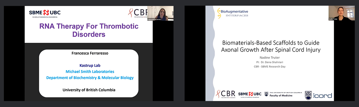 Zoom screenshots of awardees for the CBR-SBME Research Day 2021 summer student awards: Francesca Ferraresso on the left, who won the People's Choice Award, and Nadine Truter on the right, who won the Best Oral Presentation Award.
